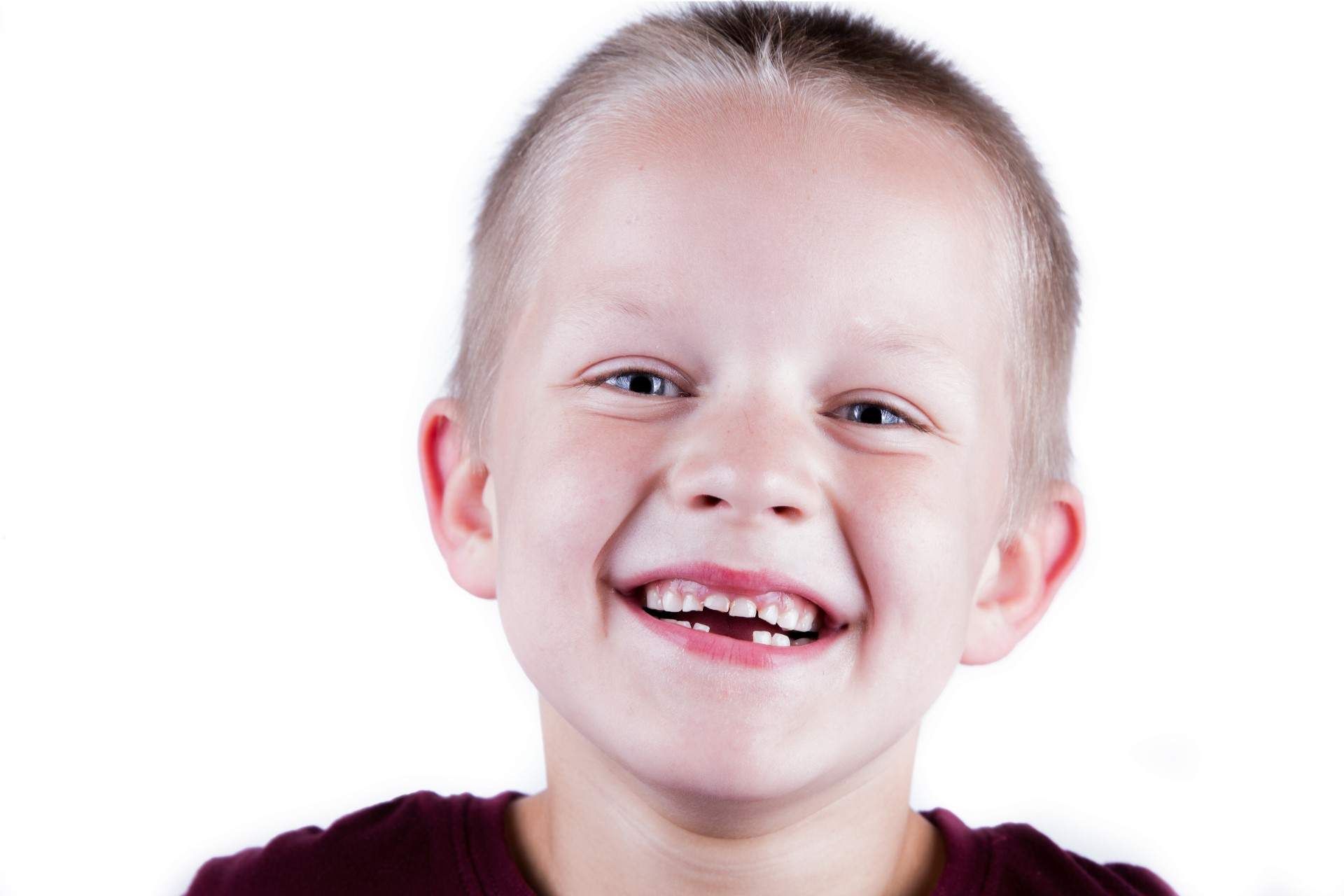 smiling-toothless-boy-on-white-back